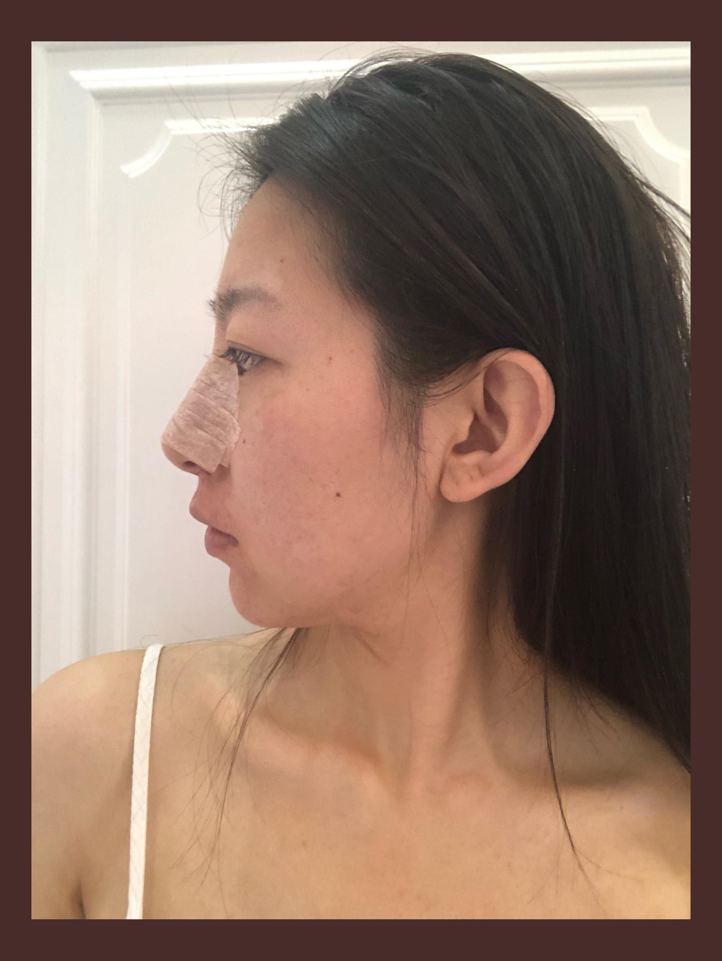 草莓的隆鼻术前照
