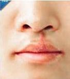 的唇裂修复术后照
