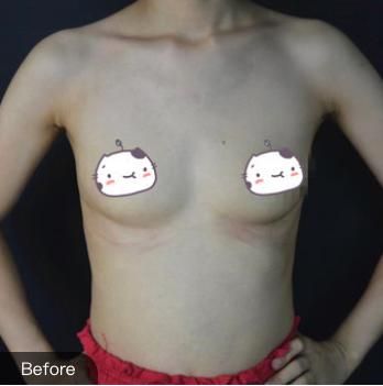 的假体隆胸术前照