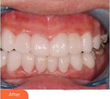 的牙齿矫正术后照