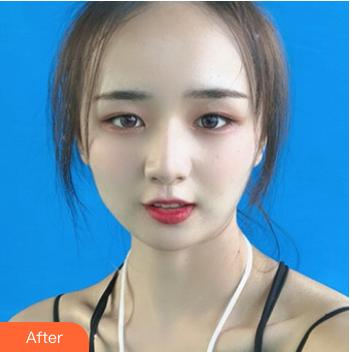 的下颌角整形术后照