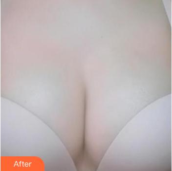 的隆胸术后照