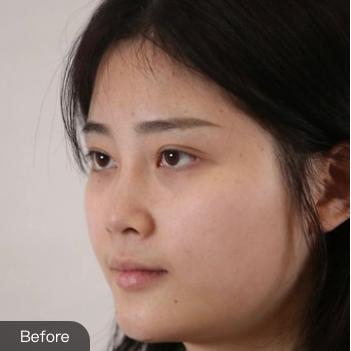 的激光祛斑术前照