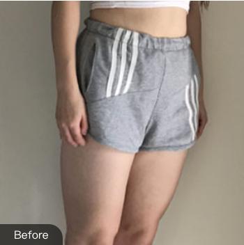 的大腿吸脂术前照