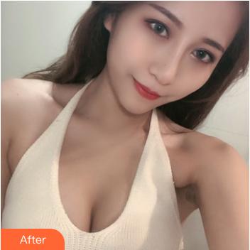 绵一的假体隆胸术后照