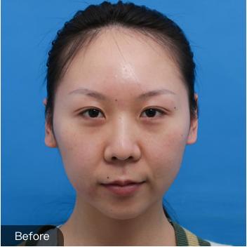 的双眼皮修复术前照