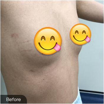 绵一的假体隆胸术前照