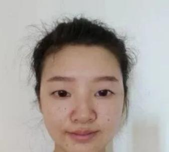 绵一的双眼皮修复术前照