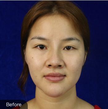 绵一的硅胶假体隆鼻术前照