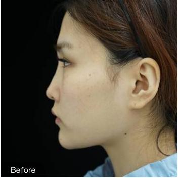 绵一的膨体假体隆鼻术前照