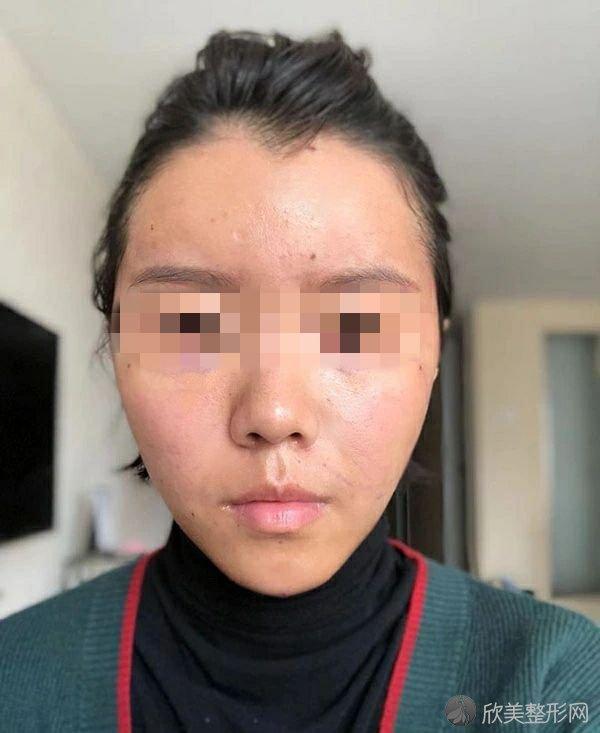 北京京韩医疗美容诊所乔爱军医生做面部脂肪填充怎么样?效果好吗?案例来揭