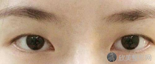 四川米兰柏羽医学美容医院康春雨医生做双眼皮怎么样?效果好吗?附案例~