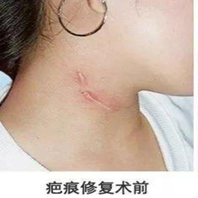 八大处王佳琦皮肤扩张器手术效果图?隆鼻地址_价格在线查询