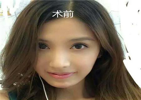 八大处杨晓楠脸部提升怎么样?眼综合顾客反馈案例_收费标准