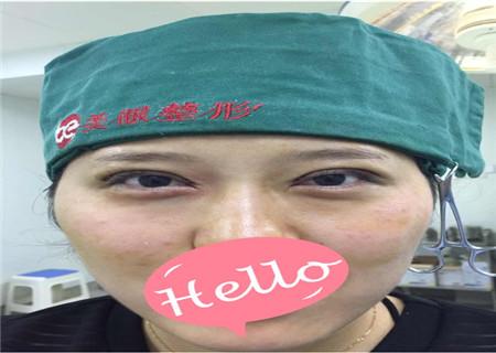 中日友好医院马力的双眼皮案例?吸脂案例和价格同步分享!