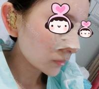 做了鼻综合之后,美美的给自己化上妆也是赏心悦目!