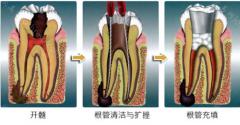 根管治疗后的牙痛?