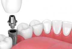 补牙材料脱落的四大原因
