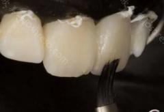关于补牙材料的介绍