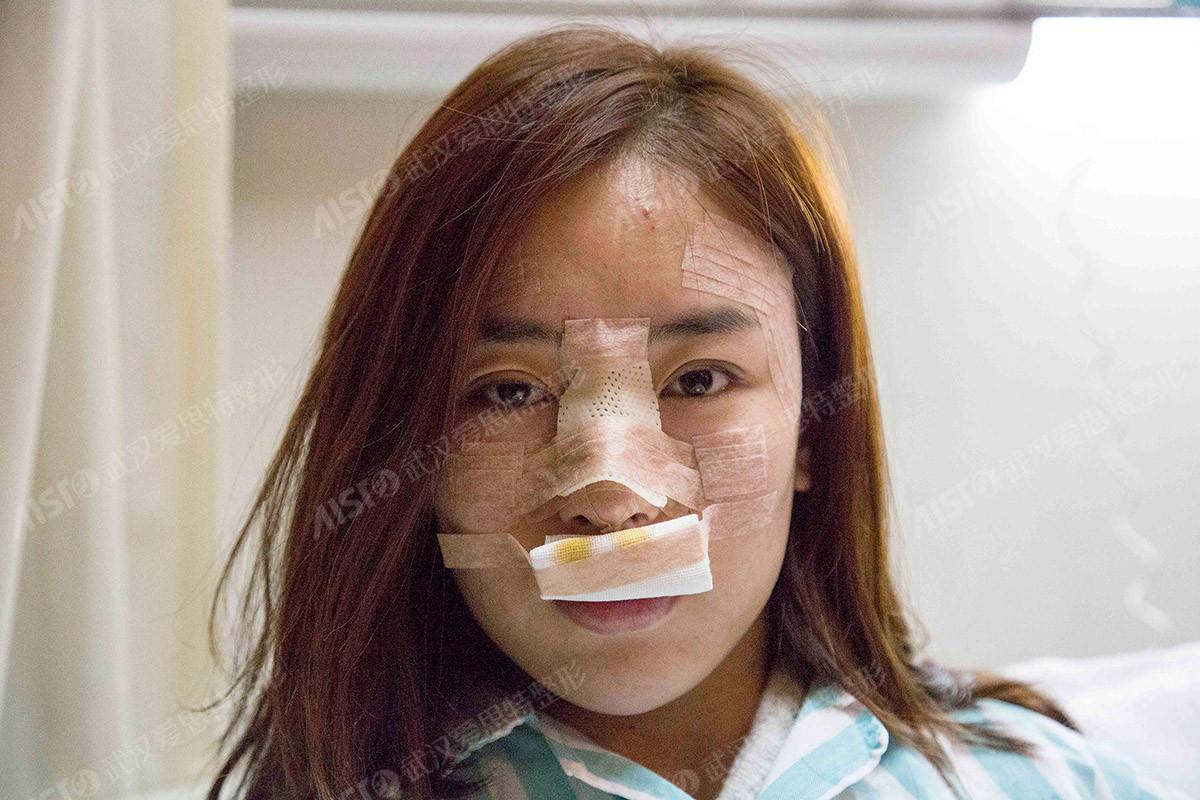 的鼻部综合治疗术前照
