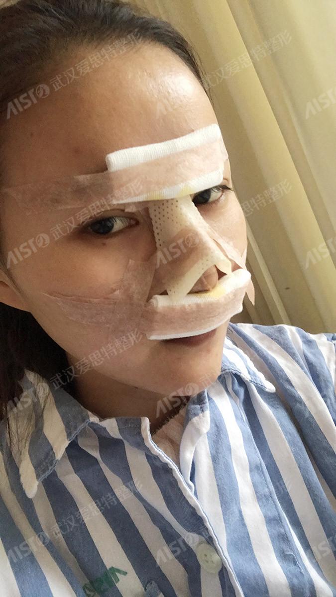 武汉爱思特杨水斌鼻部综合治疗做得怎么样?杨水斌鼻部综合治疗真人案例_手术