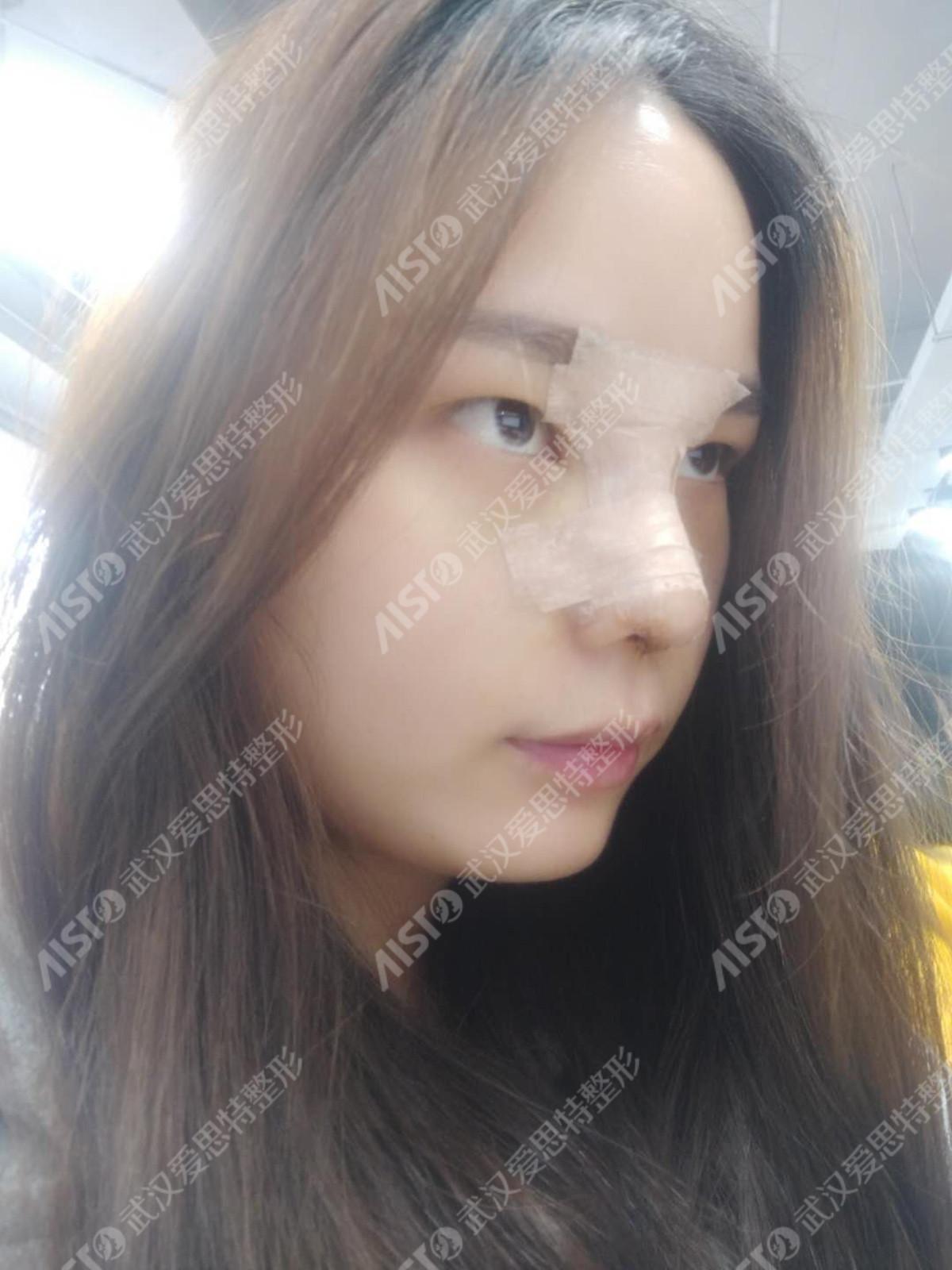 武汉爱思特伍乐鼻部综合治疗真人案例效果_恢复过程