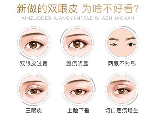 全切双眼皮可以修复吗
