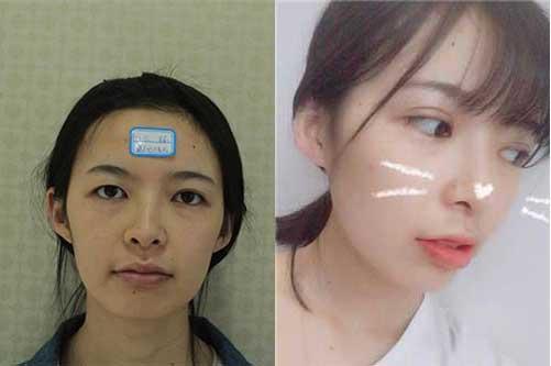 韩式三点双眼皮案例