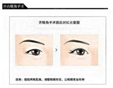 详解开内眼角和外眼角手术的区别