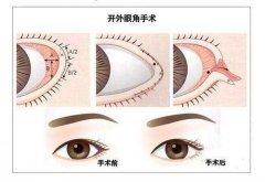 开外眼角的好处,改善吊梢眼和小眼畸形