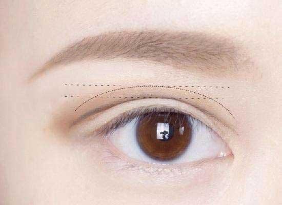 双眼皮项目
