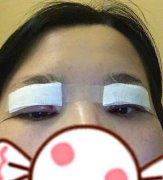 眼综合一个月恢复过程全解析(详)