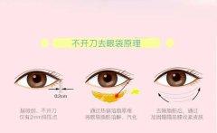 激光去眼袋好还是手术去眼袋好,两种去眼袋方式利弊分析!