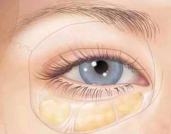 内切去眼袋后凹陷