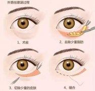 什么是外切去眼袋,哪种眼袋需要做外切