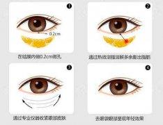 光纤溶脂去眼袋手术过程详解