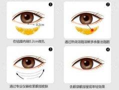 什么是光纤溶脂去眼袋,溶脂去眼袋好吗
