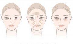 眶隔脂肪释放去眼袋恢复时间及护理方法