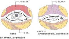 矫正上睑下垂的3种主流方式