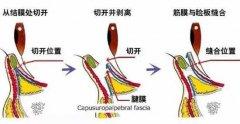 下睑下至术手术步骤(过程详解)