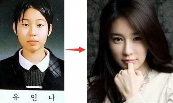 刘仁娜整容前后对比照