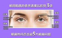 眼部热玛吉术后要如何护理?谨记这7个注意事项!