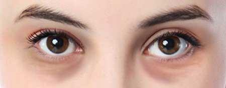 结构型黑眼圈