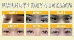 双眼皮修复是怎么做的