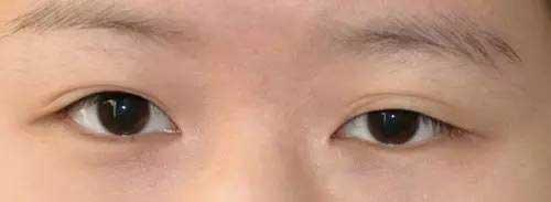 双眼皮变浅或消失图