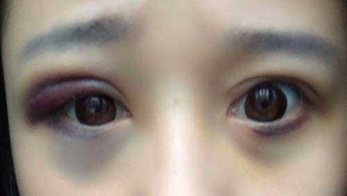 眼部血肿图