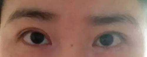 双眼皮不对称图