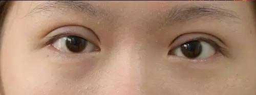双眼皮弧度不佳图