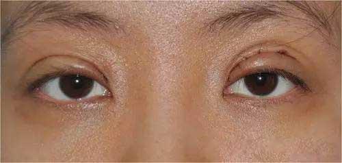 三眼皮图片