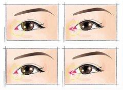 盘点开内眼角修复术的注意事项